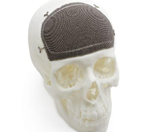 Arcam - CFM Implant
